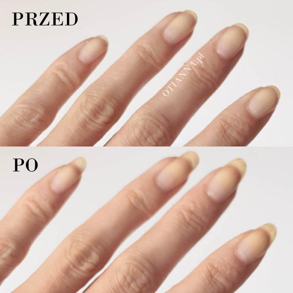 500x500-porownanie-2-otianna-naturalne-paznokcie-jak-szybko-zapuscic-mocne-paznokcie